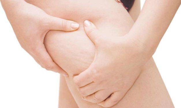 ¿Qué provoca la celulitis?